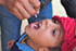 Child-polio-drops-Nepal-2011-Adam-Bjork-70x47